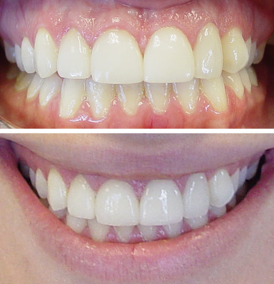 After treatment  The definitive aesthetic porcelain crowns align her teeth properly, giving the patient an improved smile.