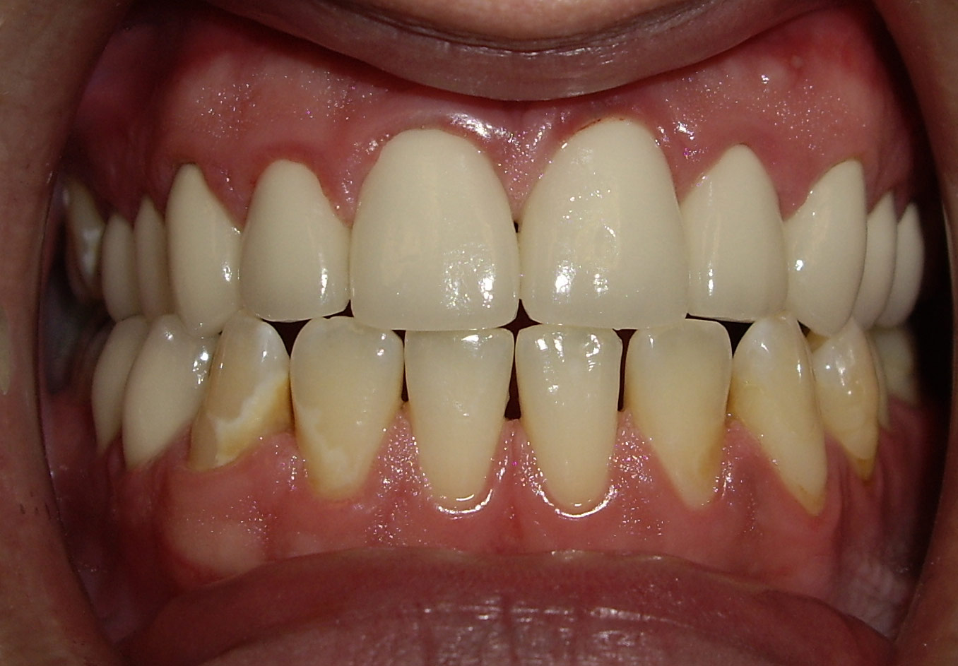 A  fter  The delivery of the crowns followed by dietetic counseling and a 3 month periodontal cleaning protocol. This picture was taken two years after the placement of the definitive aesthetic crown restorations, and he remains cavity free.