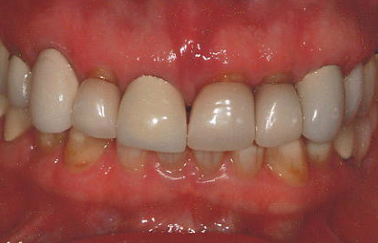 Before treatment  Patient experienced isolated periodontal bone loss to her upper right central incisor. Also noted were improperly shaped and ill fitting anterior crowns.