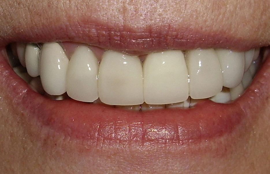 After treatment  Once the gums had healed to their definitive gum height, and the implant achieved full osseous integration, three aesthetic all porcelain crowns were fabricated and cemented on the incisors, and a custom porcelain abutment and all porcelain crown was fabricated for the dental implant.
