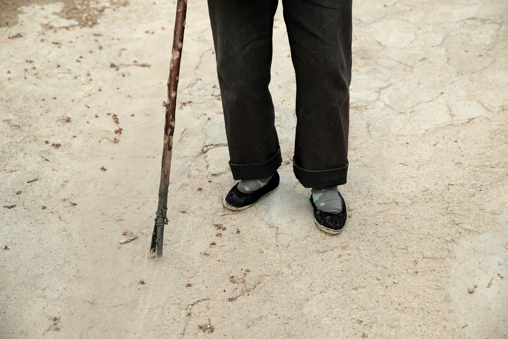 Wang Huanguo needs a stick to walk with her bound feet.