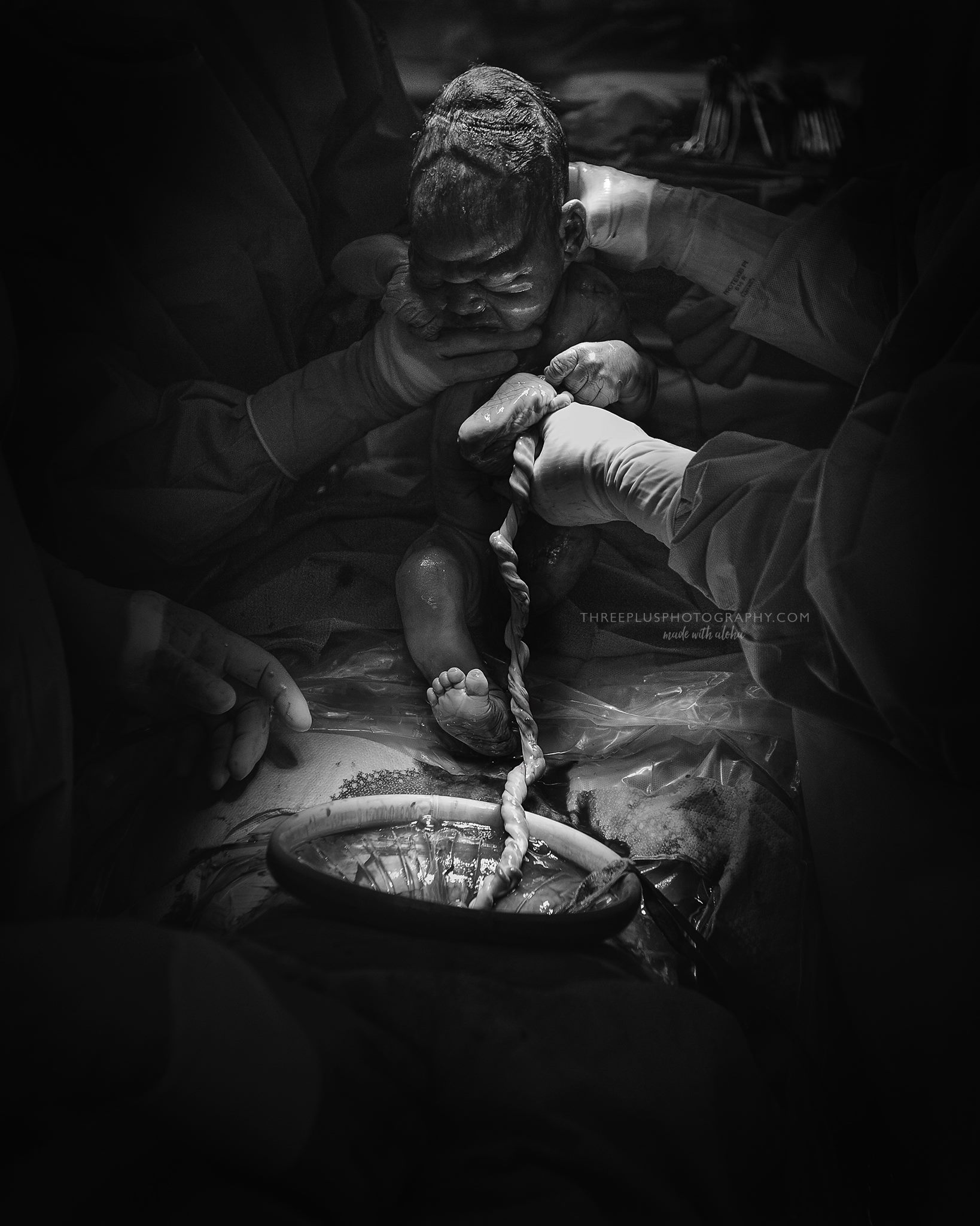 beautiful-umbilical-cord-birth-photography