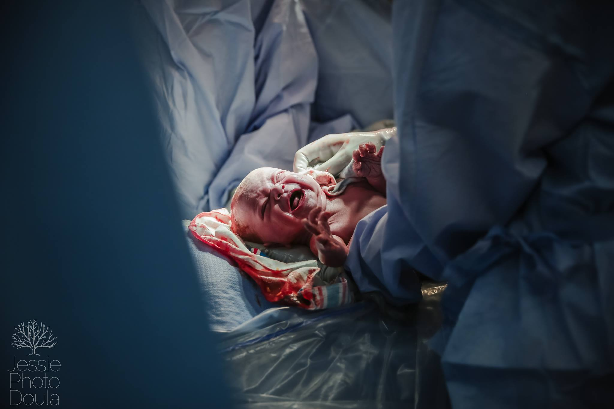 Even in emergency, family centered Cesareans are still obtainable   www.jessiephotodoula.com