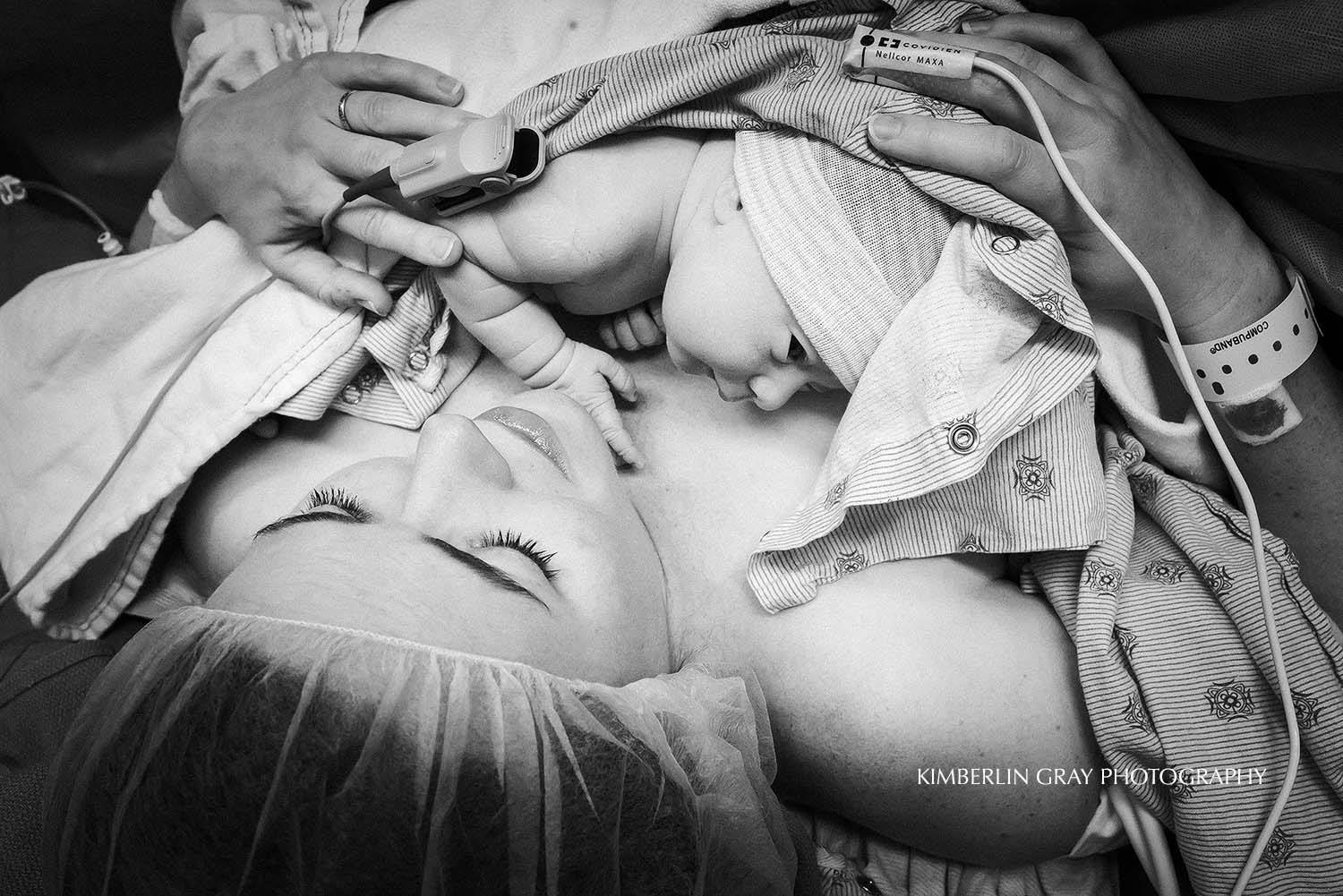 Skin to skin after their cesarean birth.   www.kimberlingrayphotography.com