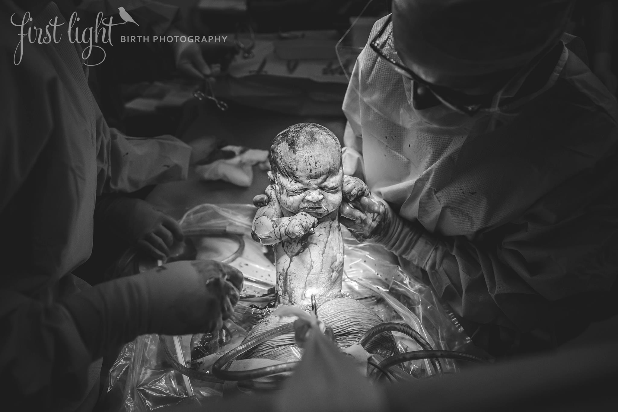 This Mumma had this amazingly healing c-section after two traumatic births.   www.facebook.com/firstlightbirths