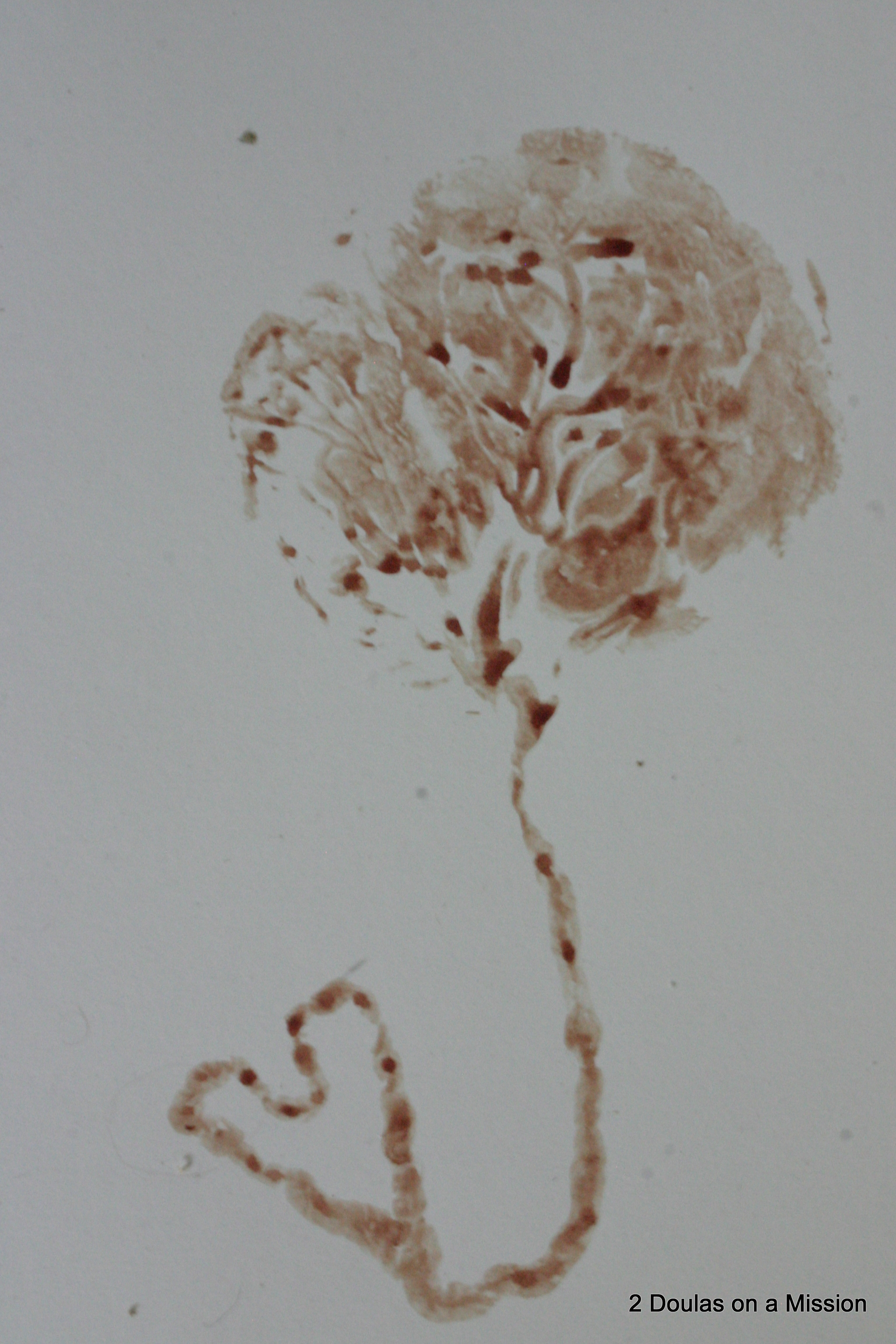 Placenta Prints:  can be made using the blood from the placenta, or edible, non-toxic paint. Prints can be done on watercolor paper, or on canvas.