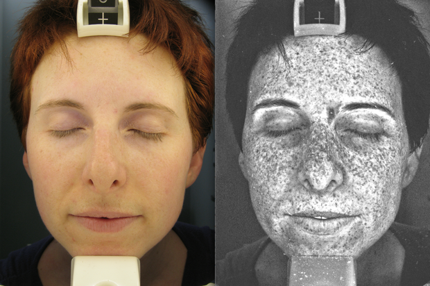 UV Facial Lamp shows sun damage under the skin we can't normally see.