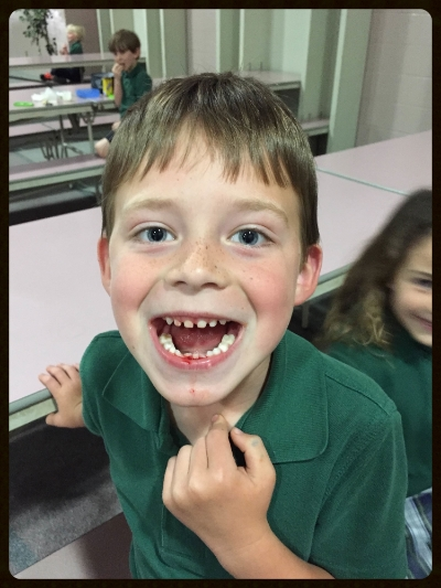 First lost tooth!!!