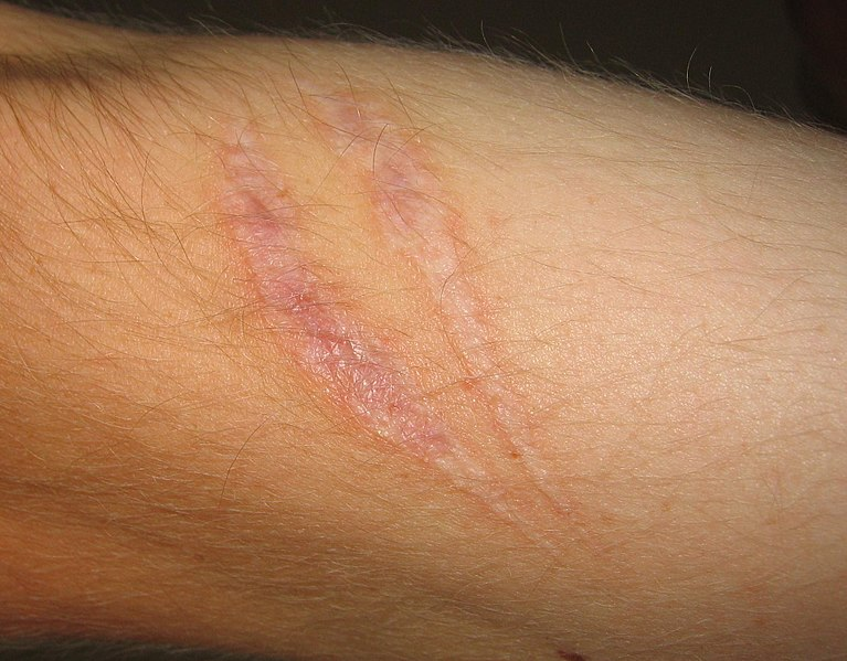 scar pic.jpg