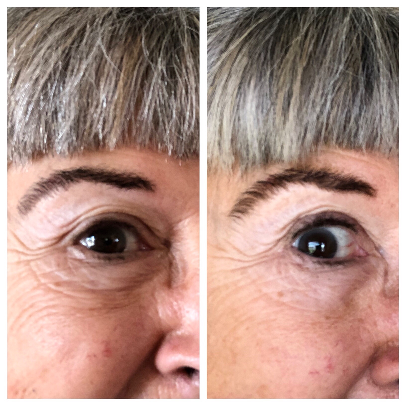 Before and after a seven day trial of PRAI Ageless Eye Tight Uplift Serum and Ageless Eye D-Crease.