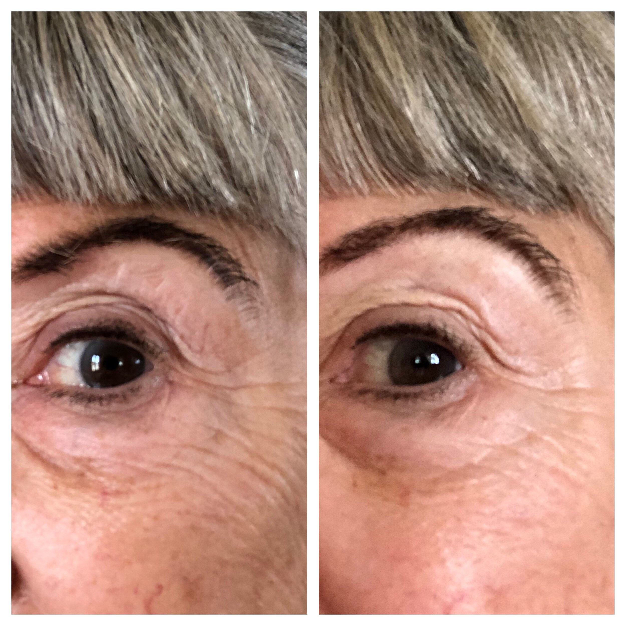 Before and After Shots of my seven day PRAI eye creme & serum trial.