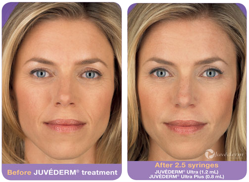 juvederm-before-after.png