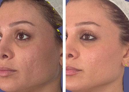 Lasers Phillips Aesthetic Dermatology