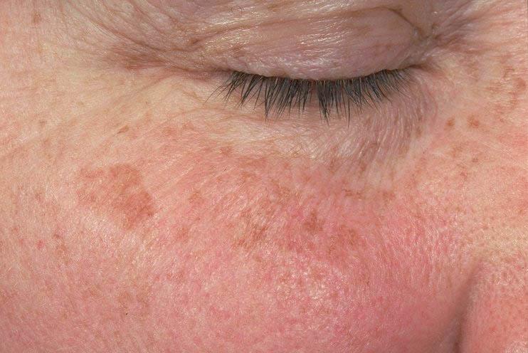 Liver Spots Blog Image
