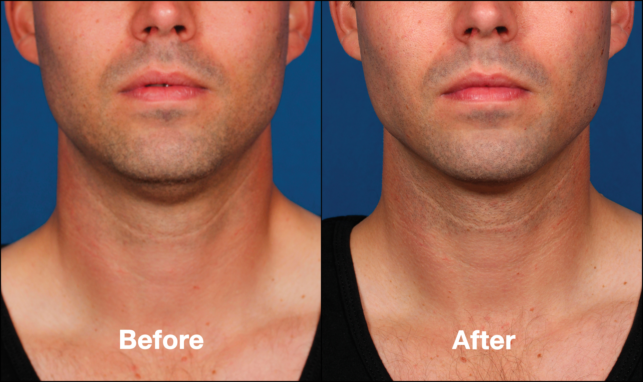 KybellaPatientPR2BeforeAfter(FrontView).jpg