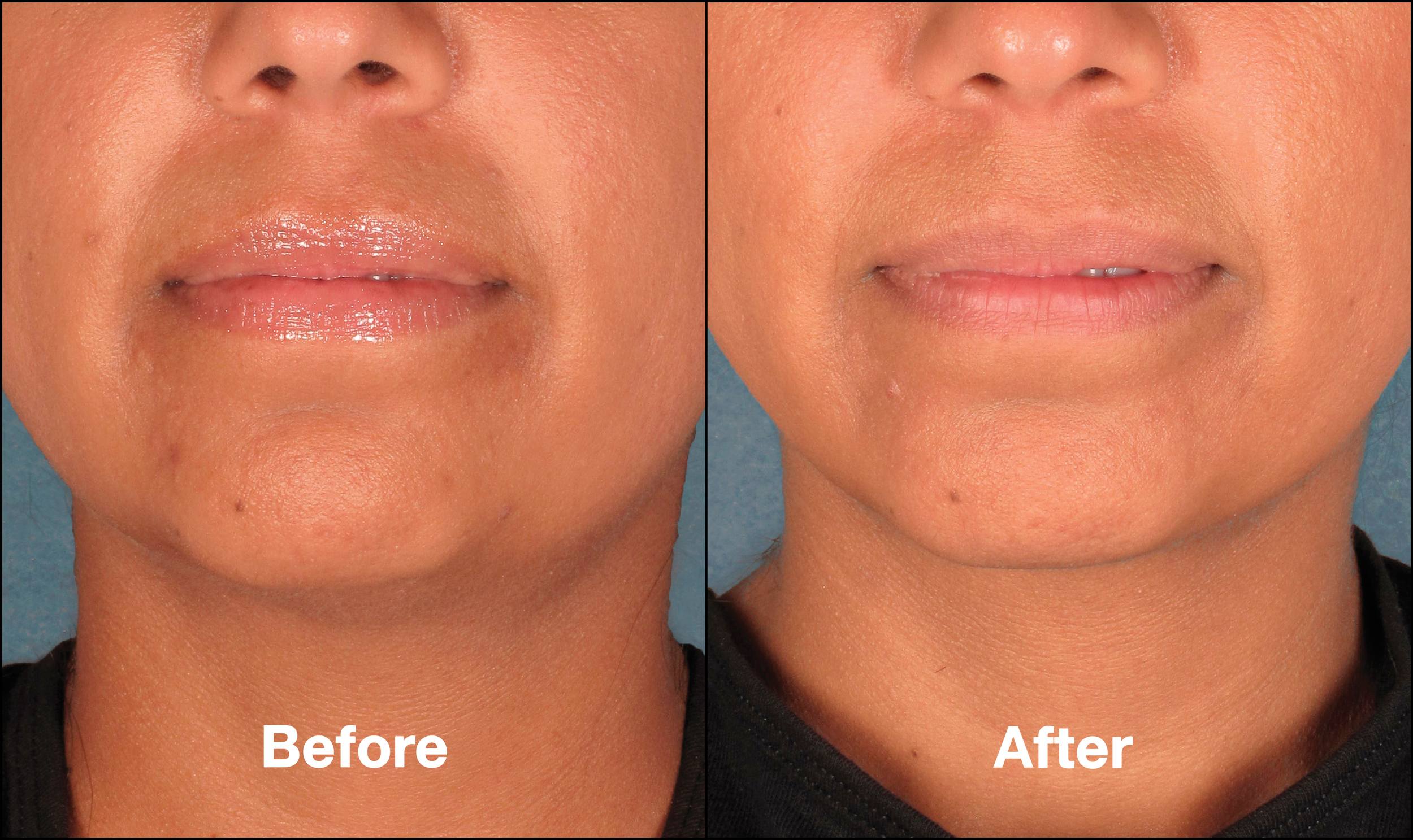 KybellaPatientPR6BeforeAfter(FrontView).jpg