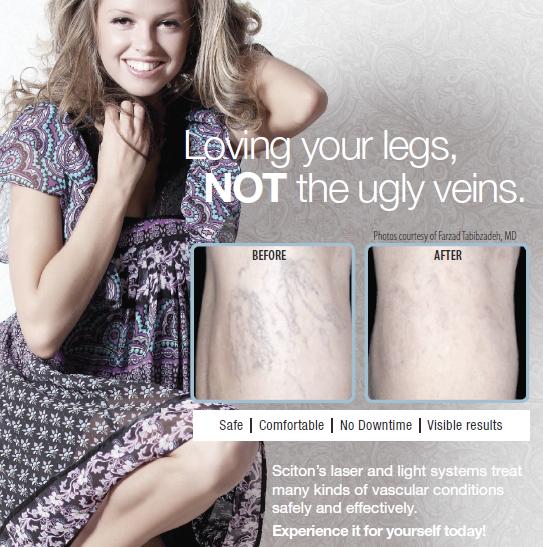 Vascular-Legs.png