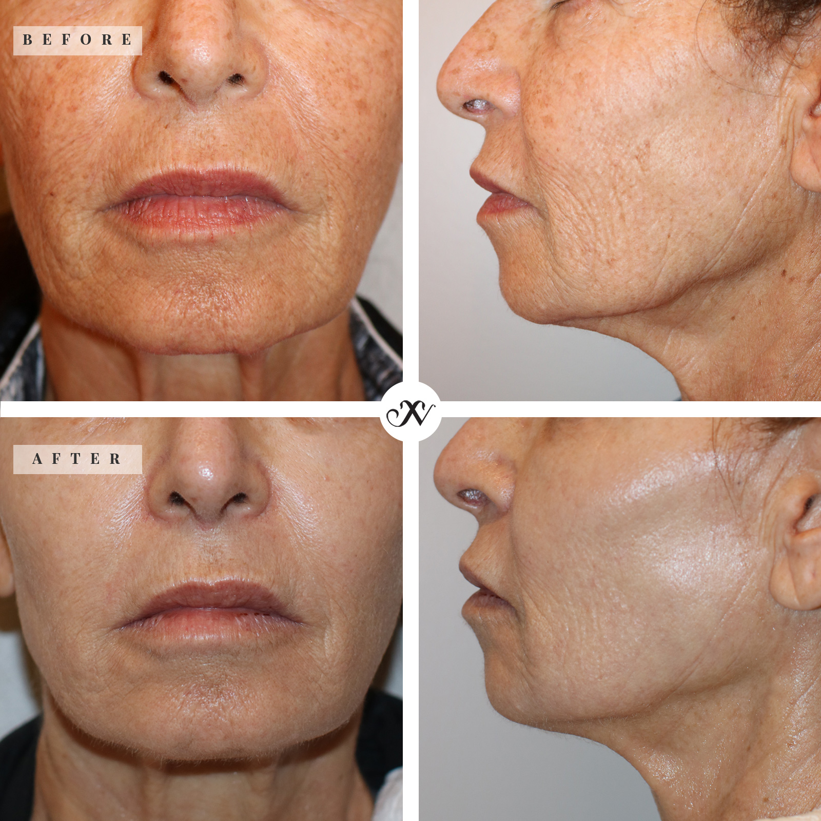 Profractional Before and After.jpg