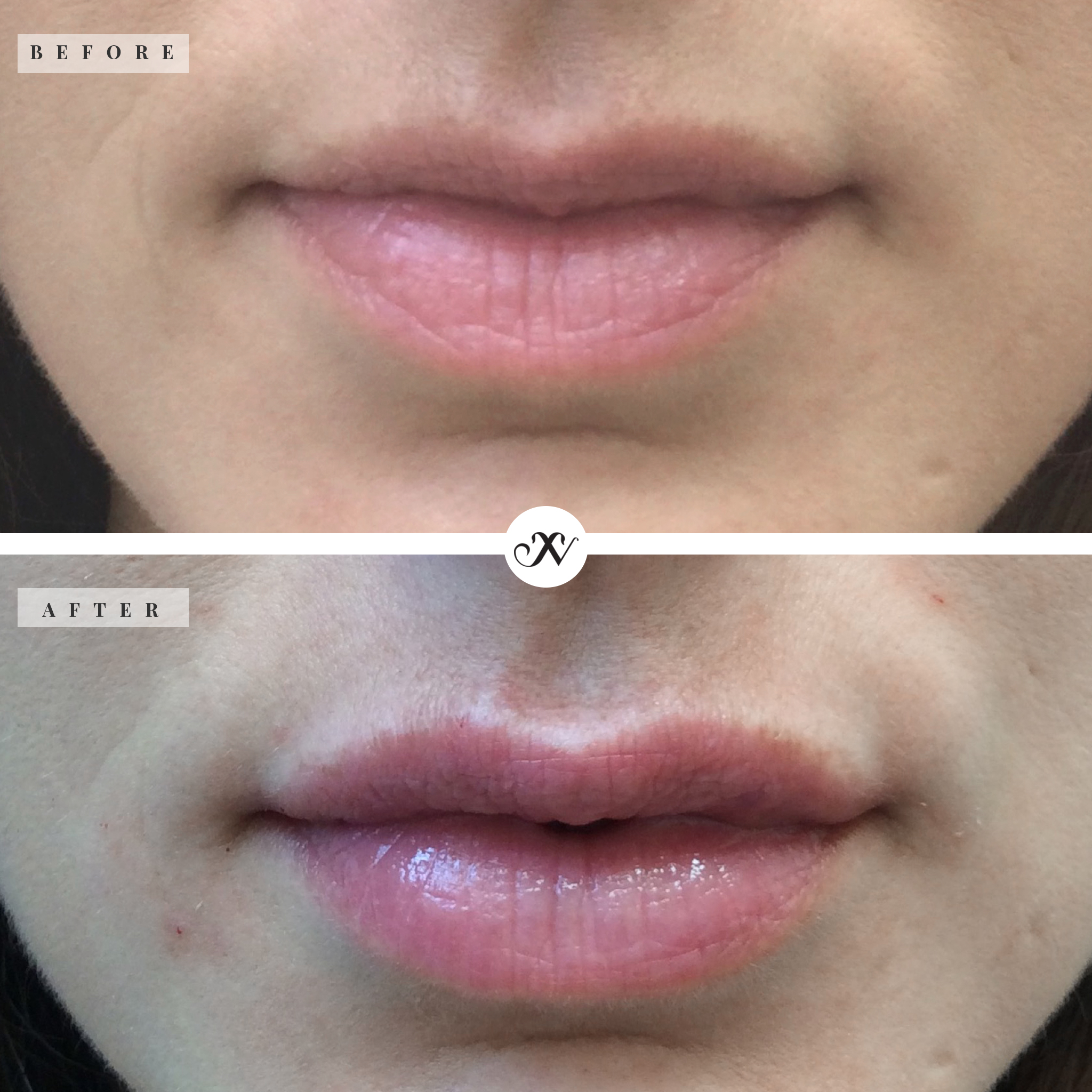Lips_square_B&A_website2.jpg