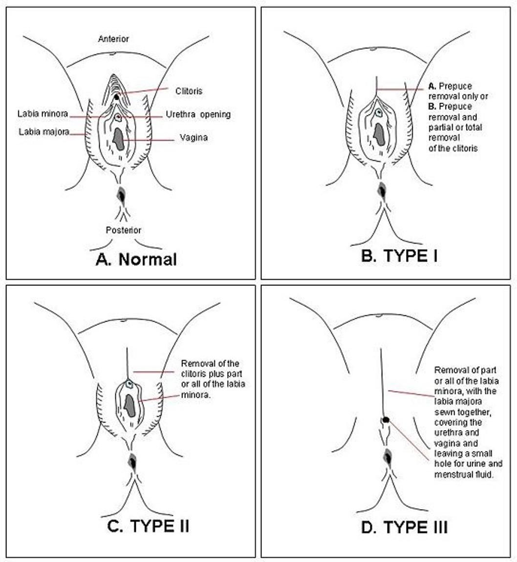 FGM diagram