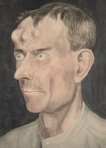 A portrait of gummatous syphilis affecting the forehead