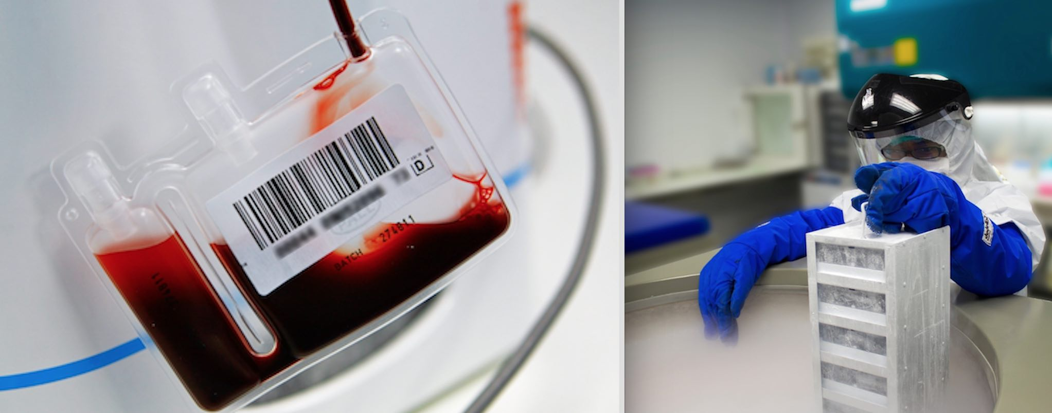 Umbilical cord blood prepped for stem cell storage   (all photos courtesy of Smart Cells)