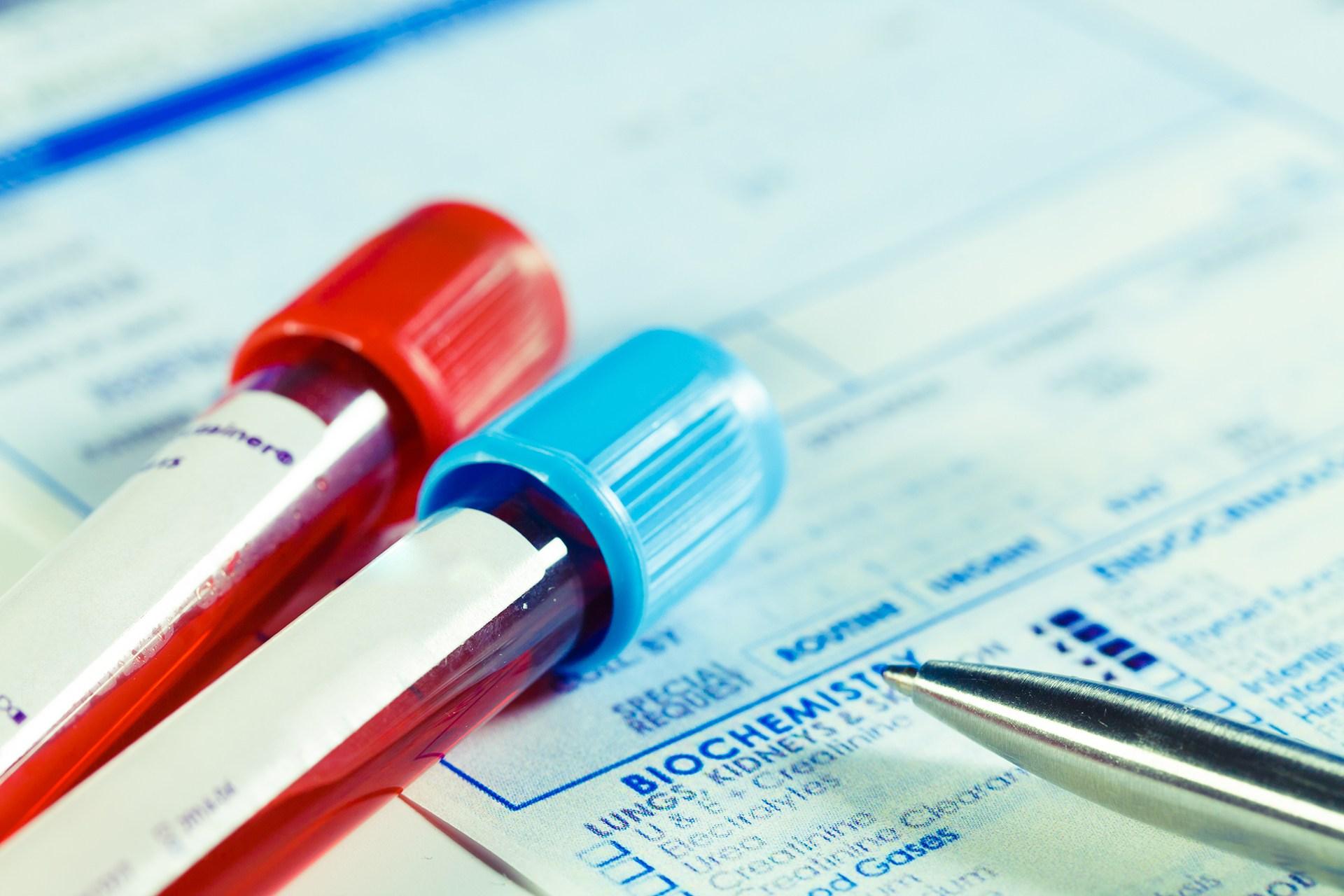 Dr Martin GP Blood tests