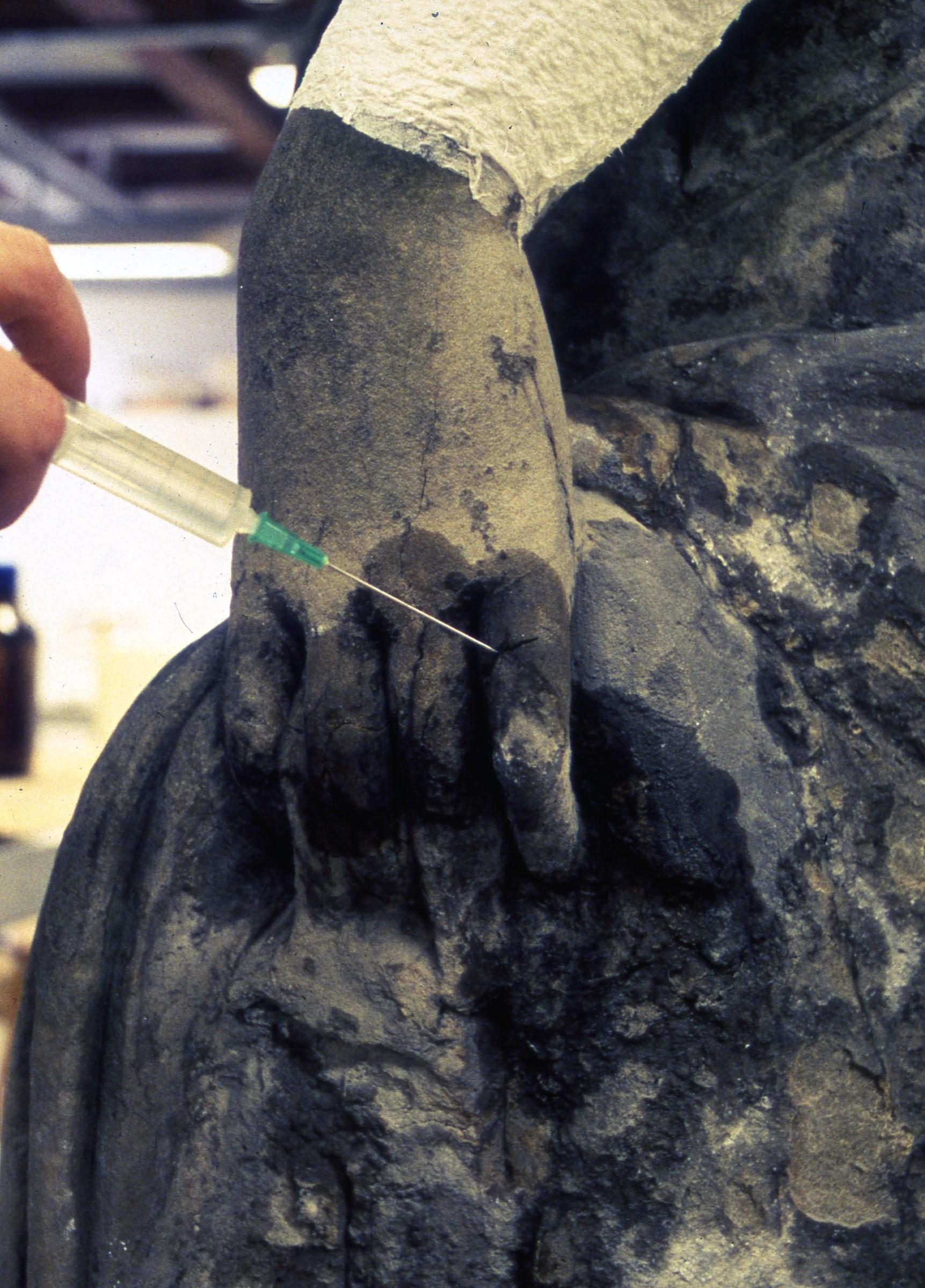 Säkringsåtgärder  Åtgärder som syftar till att skydda särskilt utsatta eller starkt vittrade delar från att skadas under konserveringsprocessen.  Vanligtvishandlar det om att förstärka stenen partiellt inför rengöringen genom prekonsolidering eller lagning och limning.