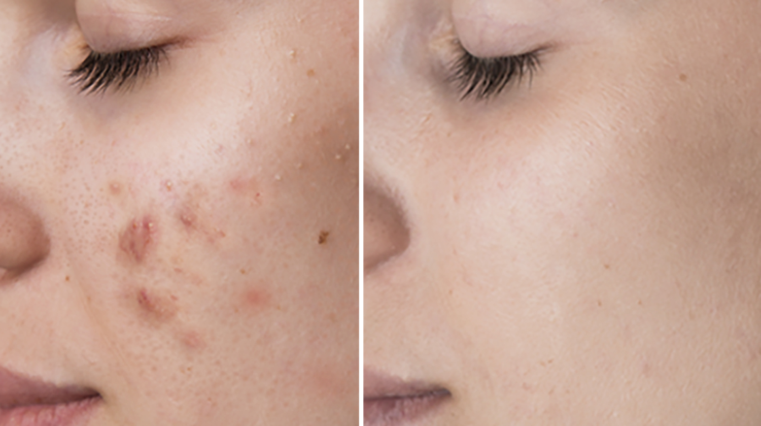 microneedling-acne-treatment-in-houston.jpg