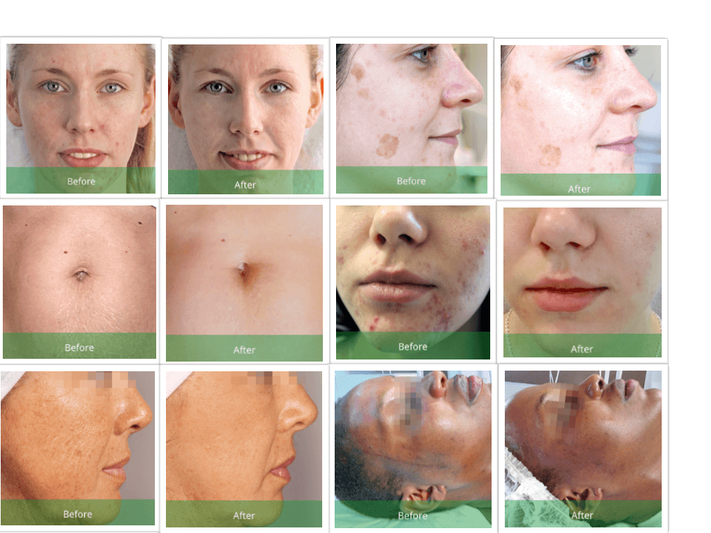 Green Peel Before and After Results. Several Treatments needed and in combination with using proper home care products.