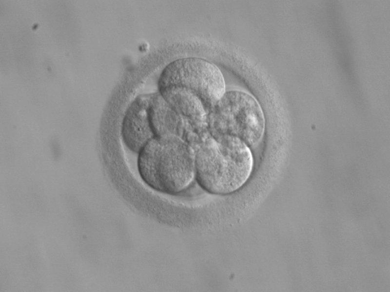 A human embyro (Courtesy/RWJMS IVF Program)