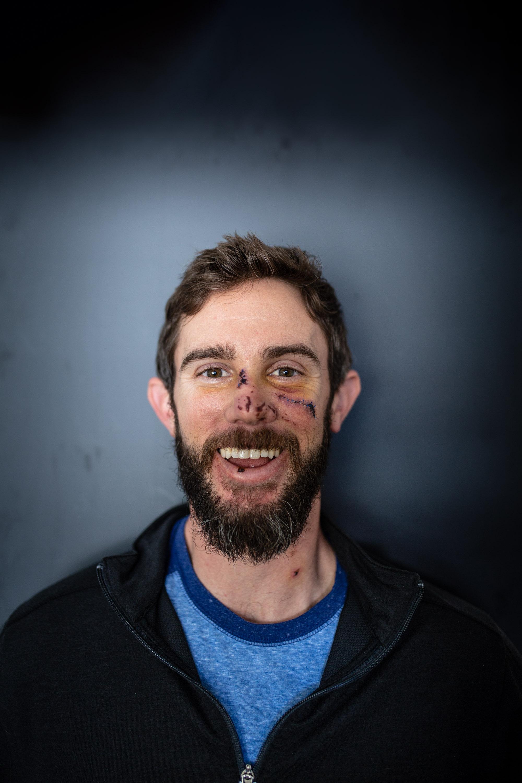 Travis Kauffman Mountain Lion Attack--2.jpg