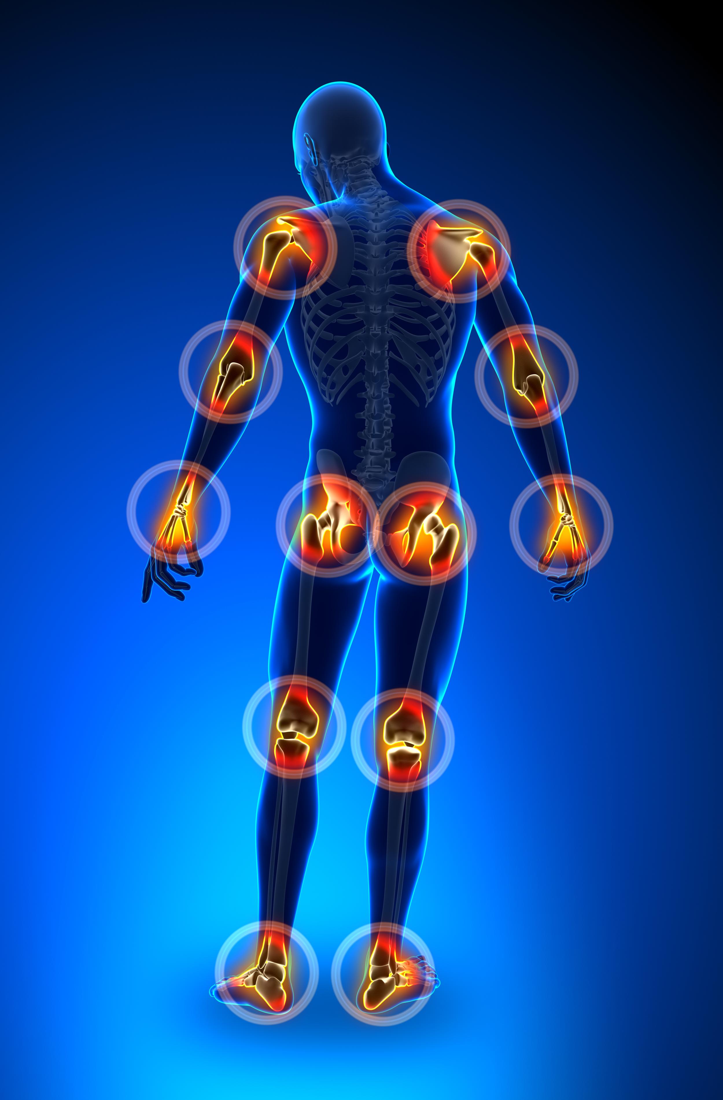 bigstock-Joints-pain--full-figure-44008801.jpg