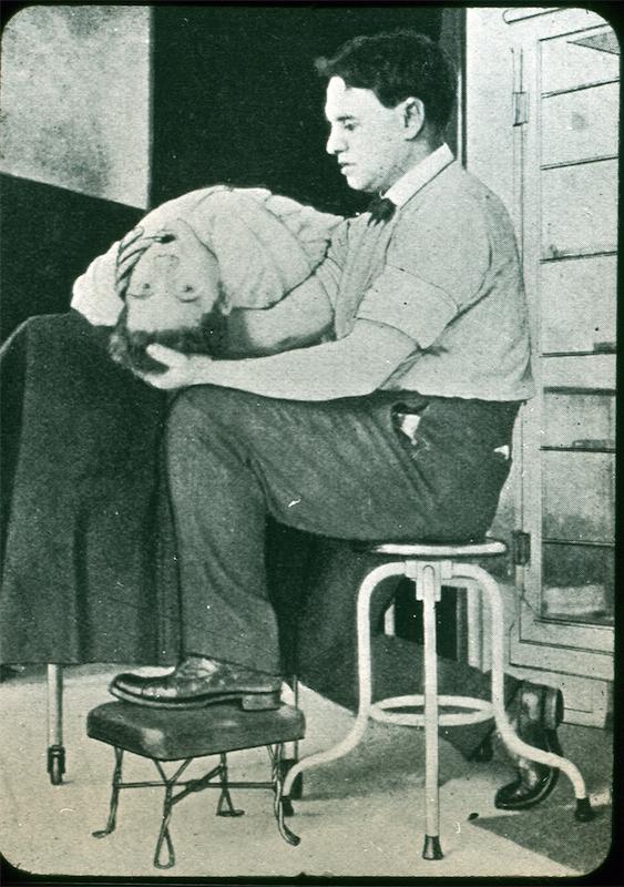 Head holding technique