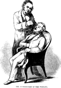 Figure 1   Horace Green performing blind orotracheal cannulation of the larynx and trachea with a whalebone probang to administer topical silver nitrate to the diseased membranes of the airway. [39]