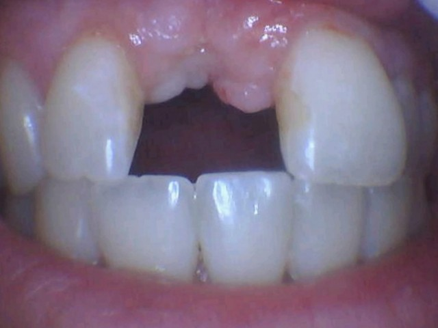 Our Patient is missing her front tooth and wants a bio-inert, metal-free zirconia dental implant.