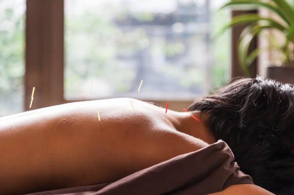Dandelion Acupuncture