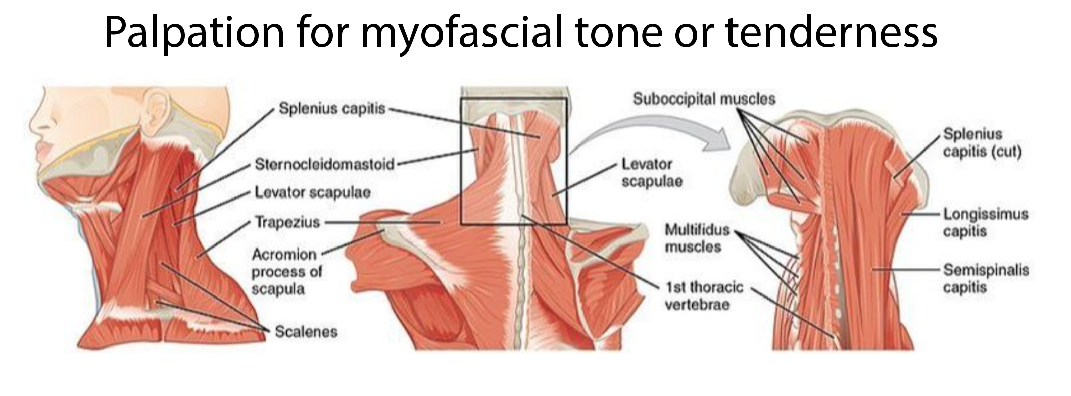Palpation muscle.PNG