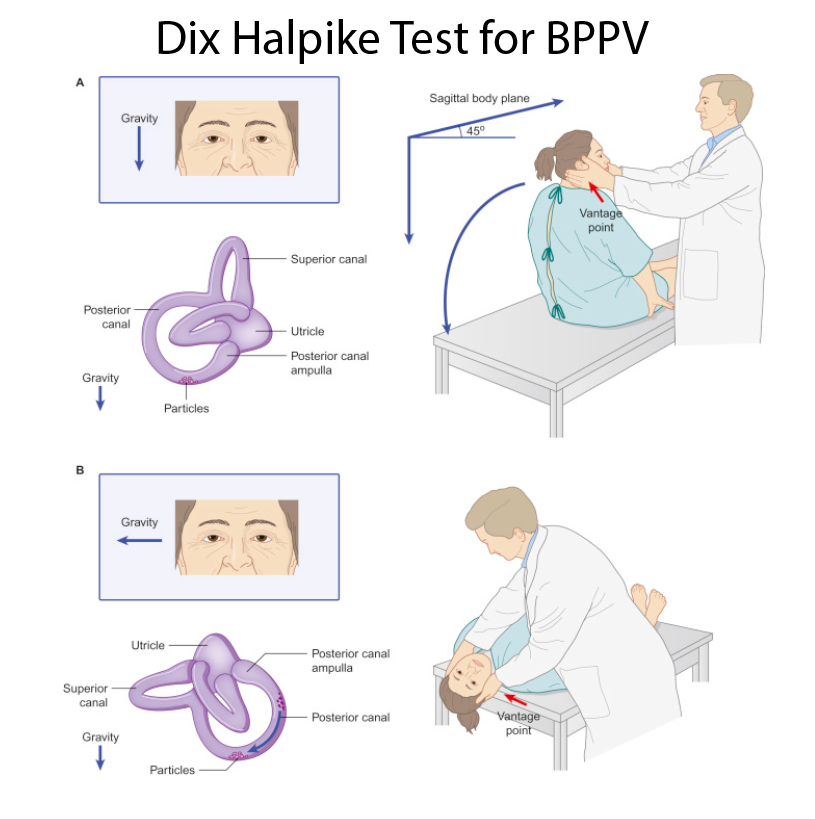 DH for BPPV.PNG