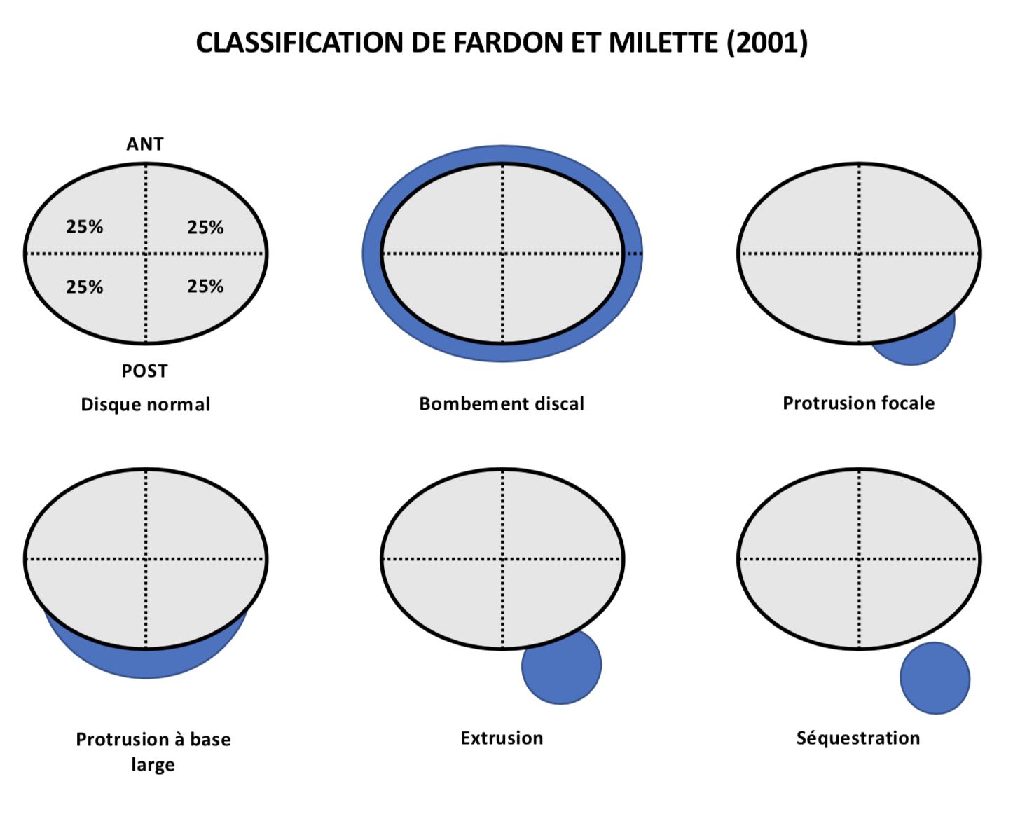Fardon & Milette disc morphology classification.png