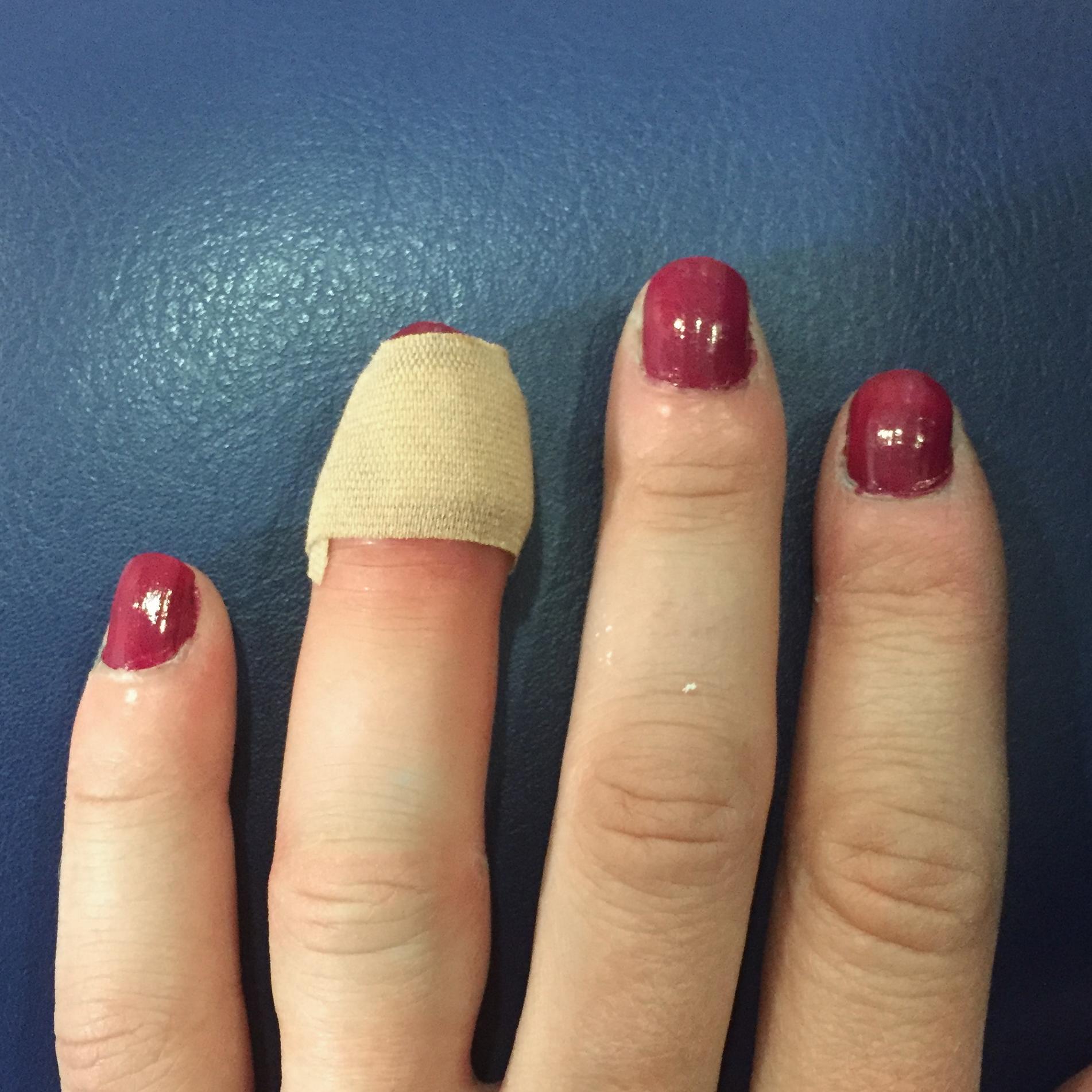 My swollen finger. Nice.