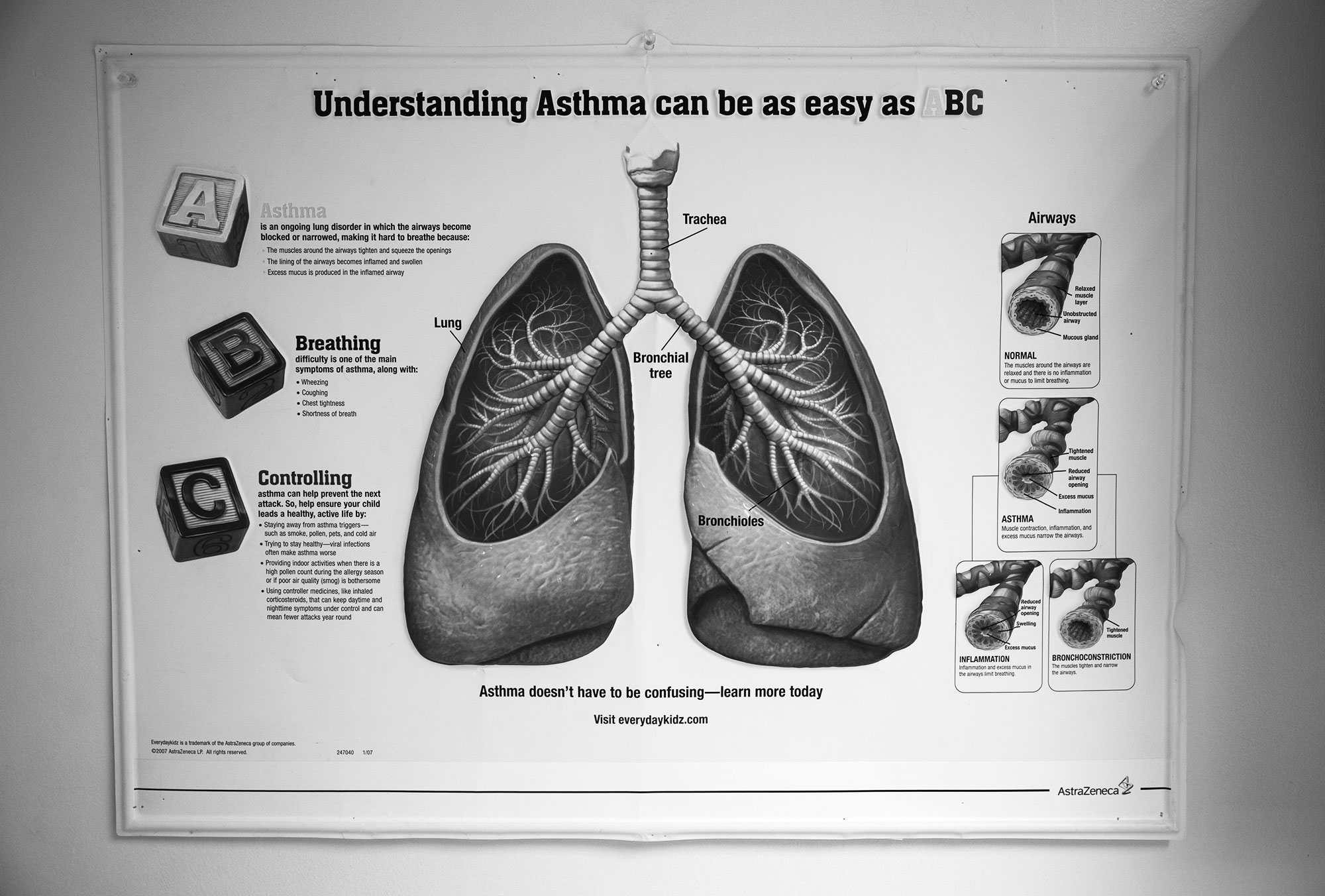 A poster hanging in Dr. Mohammad's office is used to educate patients on the physiology of asthma: what it is, how the bronchioles constrict, how inflammation and phlegm leading to persistent cough and wheezing. With this education parents and children understand why they should take their medication daily to prevent asthma symptoms.