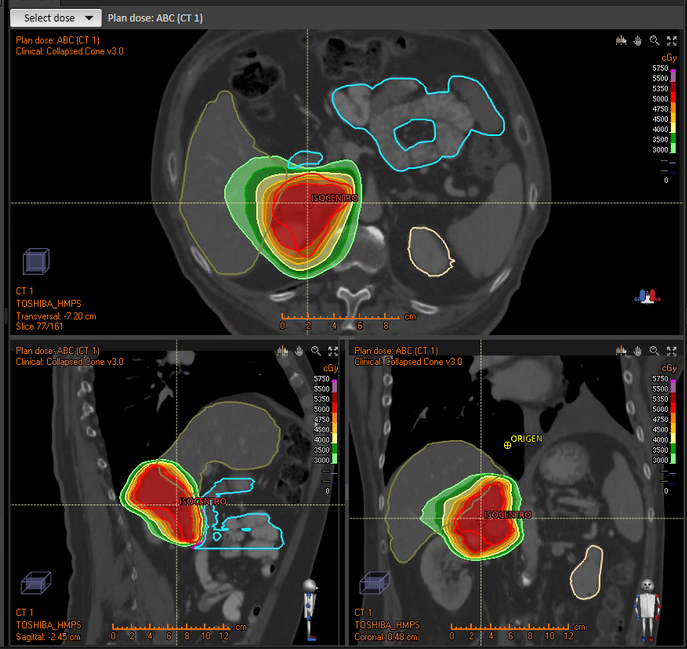 metastasis en glandulas suprarrenales sintomas