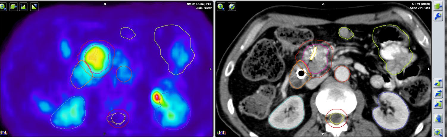 simulacion PET pancreas.png