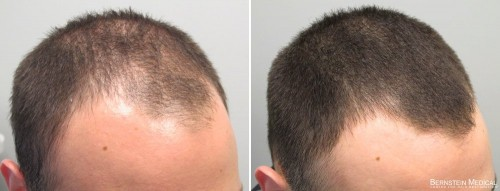 Yes, that minoxidil. ( Source )