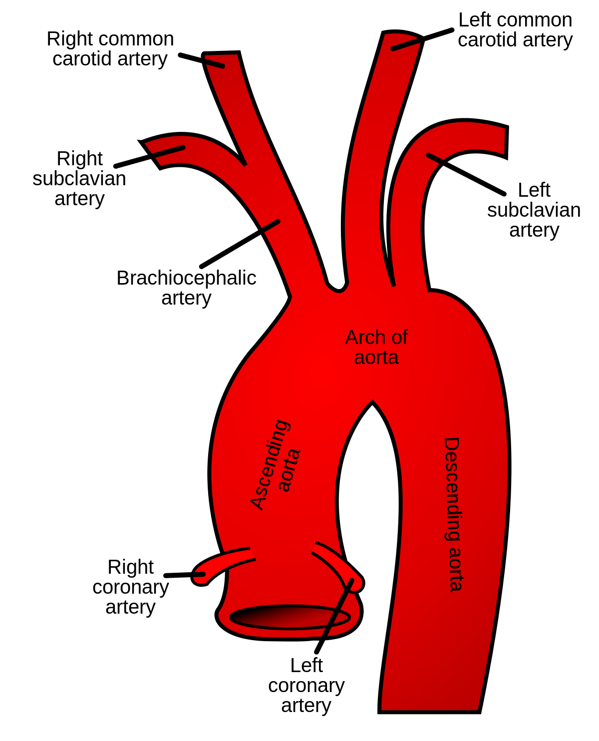 A coronary, a cerebral, and a subclavian walk into a bar... ( Image )