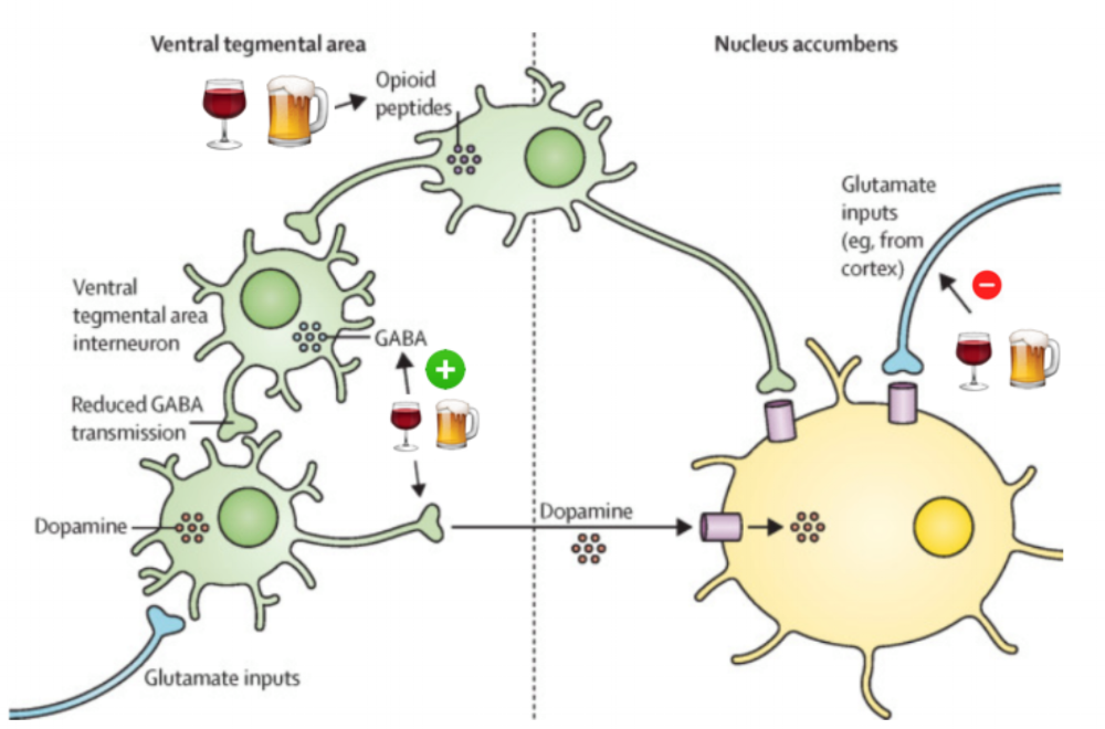 Alcohol neuroadaptation and reward: a visual representation. The image above demonstrates the complex physiology of neurons and neurotransmitters in the ventral tegmental area and nucleus accumbens and the acute effects of alcohol on the reward pathway. Alcohol (as shown by beer/wine) enhances the effects of GABA and opioid receptors while blunting the effects NMDA receptors.  (Image from  Connor et al.  The Lancet . 2016. )