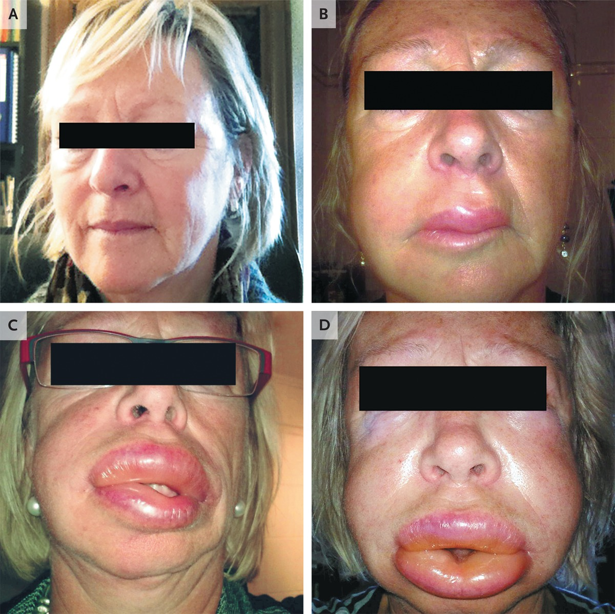 One example of facial angioedema progression.  (Image)