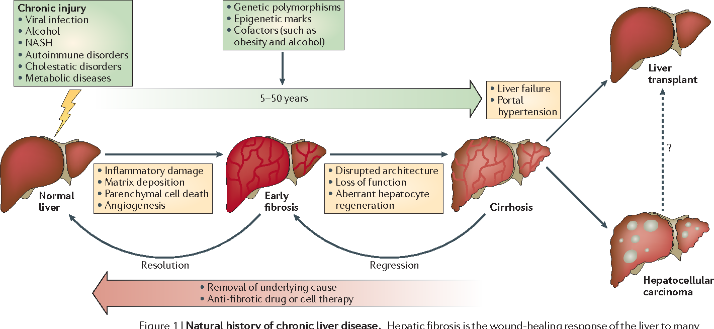 The spectrum of liver fibrosis. Note how early fibrosis can be resolved, whereas more severe fibrosis/cirrhosis can only be managed. ( Image )