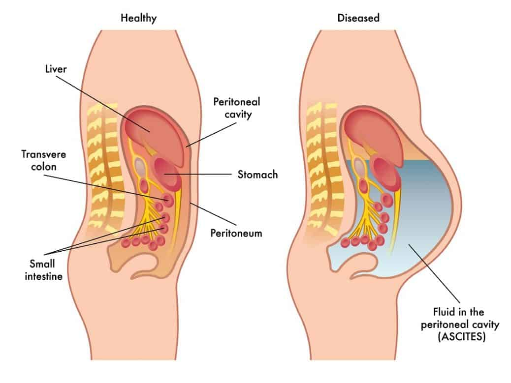 Notice how the fluid is accumulating  around  the organs and blood vessels in the peritoneal space. ( Image )